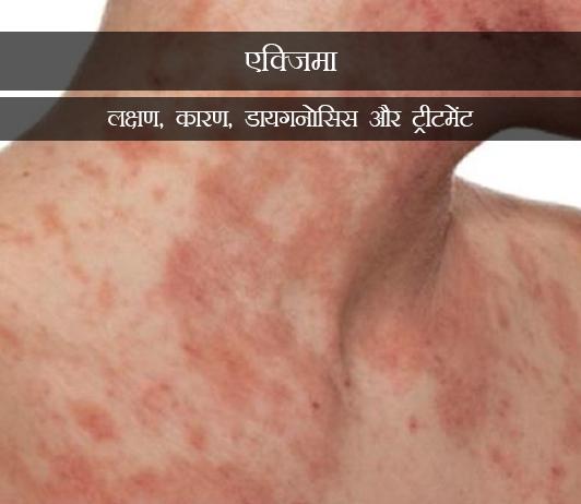 Eczema in Hindi एटोपिक डर्मिटीज(एक्जिमा): लक्षण, कारण, डायगनोसिस और ट्रीटमेंट