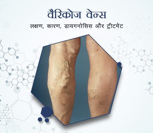 Varicose veins (Varicises) in Hindi वैरिकोज वेन्स: लक्षण, कारण, डायगनोसिस और ट्रीटमेंट