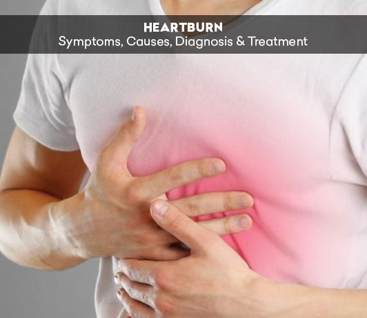 Heartburn: Symptoms, Causes, Diagnosis & Treatment