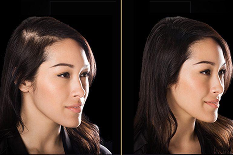 natural remedies to stop hair fall